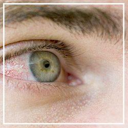 Allergic Rhinitis - Conjunctivitis