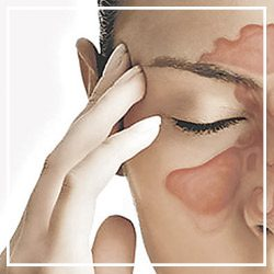 Sinusitis & Nasosinusal polyposis